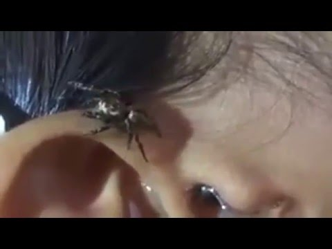 versa acqua nell'orecchio, esce qualcosa di orrendo