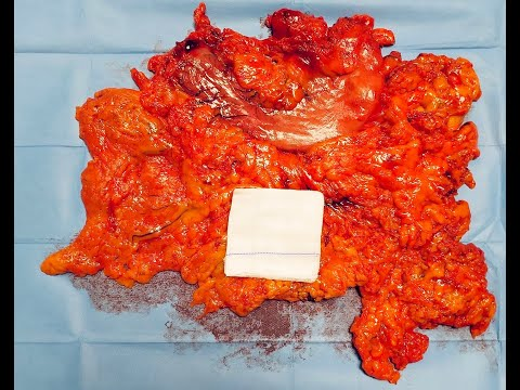 Totally Laparoscopic Gastrectomy in an Obese Patient with Gastric Cancer
