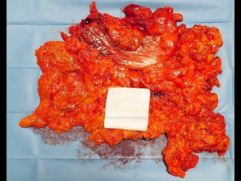 Gastrektomia laparoskopowa z powodu raka żołądka u otyłego pacjenta