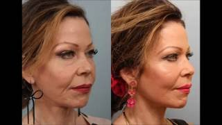 Female Revision Weekend Lift / Neck Lift by Dr. Edwin Williams