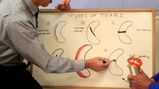 Can the Meniscus Tear in Your Knee Heal On Its Own? Knee Cartilage