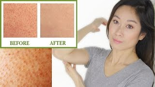 "Keratosis Pilaris Treatment | Bumps On Skin ""Chicken Skin"" 