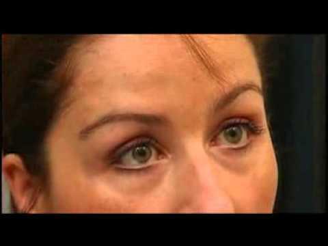 Les préparations kheel au psoriasis