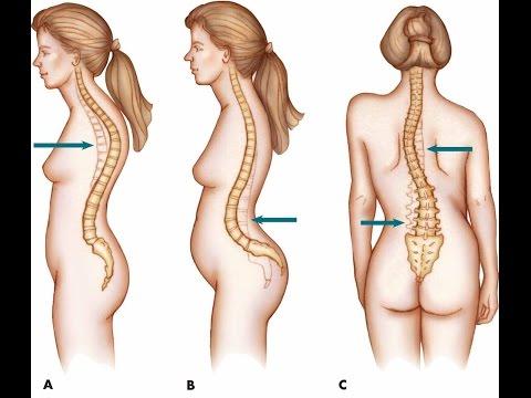 L1 tratamiento de la columna vertebral L5