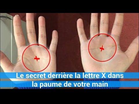 Le psoriasis et les ongles à bras des photos