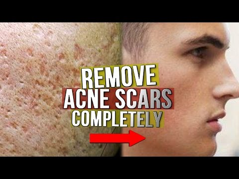 Video EXACTLY What To Do With Acne Scarring! (From Experience)