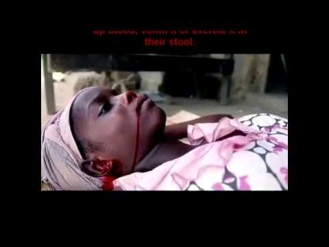 Video Meet Ebola | Signs and Symptoms of Ebola | Pictures of Ebola victims {Graphic}