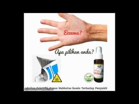 Dermatite di atopic a bambini circa un anno