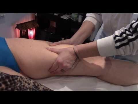 Quanto per operazione su vene di gambe