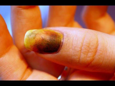 Unguento per trattamento di un fungo interdigitale