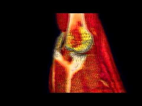 Artrita bolii articulare degetelor