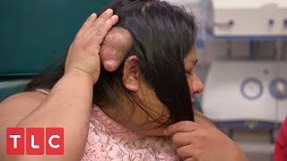 A Life Destroying Bump | Dr. Pimple Popper