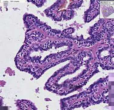 Cancer colon cea