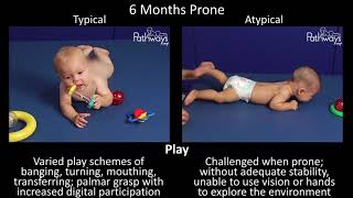 6 Month Old Baby Typical & Atypical Development Side By Side