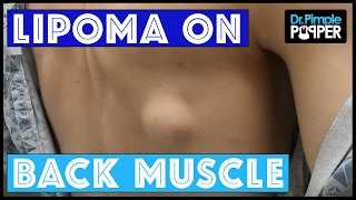 Lipoma on the back muscle