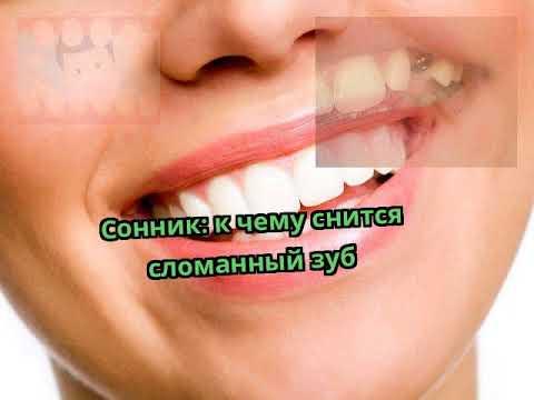 Сонник: к чему снится сломанный зуб