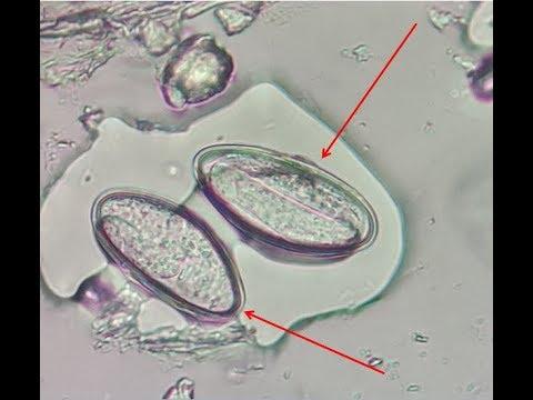 Papilloma virus tra donne