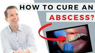 Tooth Abscess | How to Cure an Abscess