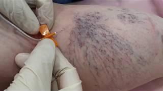 Склеротерапия Ангиолайф