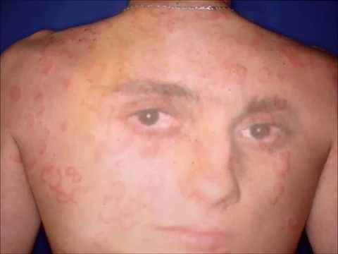 Atopowe zapalenie skóry w leczeniu ciężarnych kobiet forum