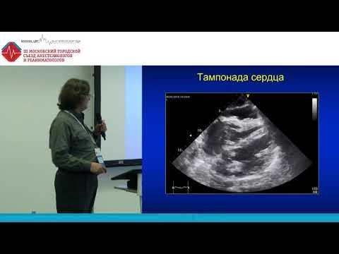 Ультразвуковая диагностика выпота в перикарде  Шорников С.Б.