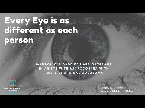Tratament oftalmologic de degenerare maculară