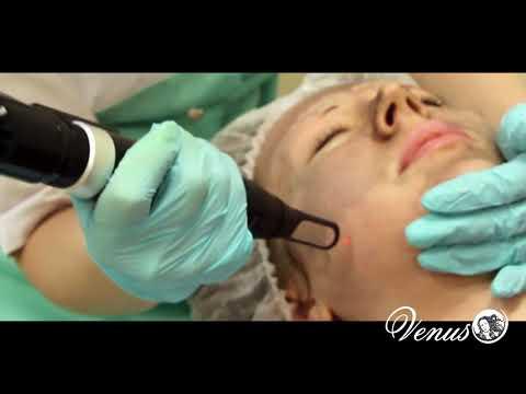 Видео отбеливающие маски для лица