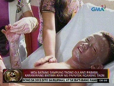 Massage ang dibdib na may implants