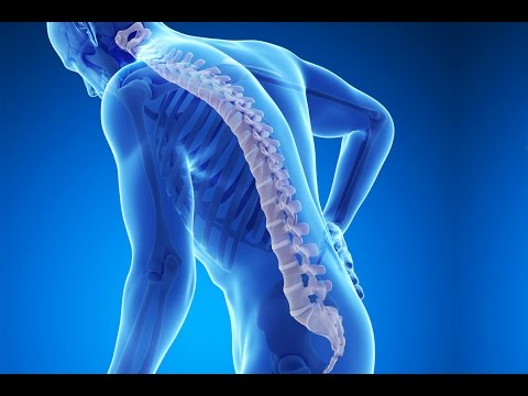 Video Cara melawan osteoporosis