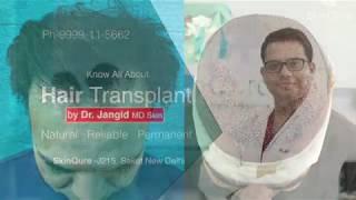 Mr Raj from San Antonio sharing his Hair transplant experience