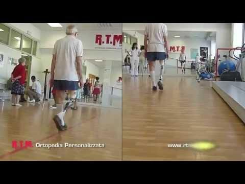 Quanto tempo ci vuole per ripristinare larticolazione del ginocchio