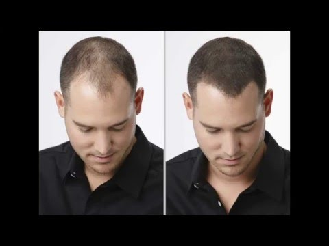 Illjuminirowanije das Haar des Mittels