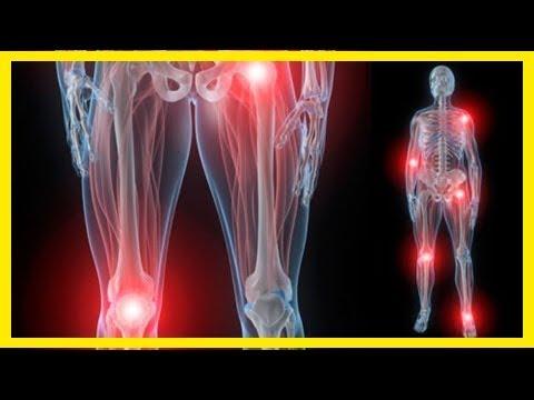 0f94bbda84c Cataplasma de arcilla y cúrcuma para dolores articulares ¿Tiene dolor de  espalda del DIU