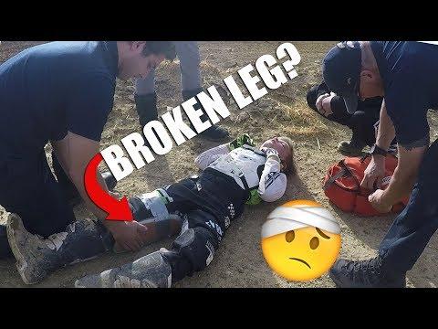 I BROKE MY LEG? (GLENN HELEN MX PART 1)