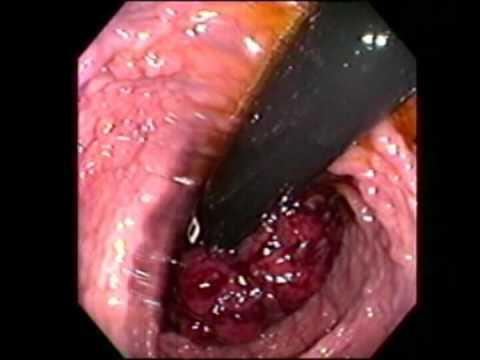 Castoreum di prostatite