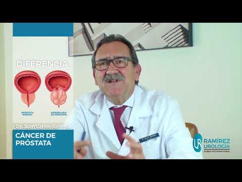 La resonancia magnética de la próstata