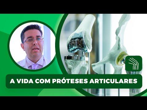 Farmaci hondroprotektory per il trattamento di prezzo congiunta