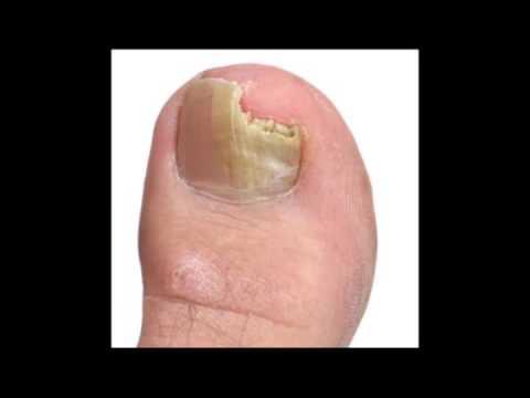 El hongo de los pie el tratamiento las revocaciones el foro