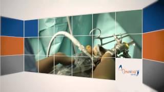 preview picture of video 'Hystérectomie en ambulatoire à la Clinique de Vitrolles'