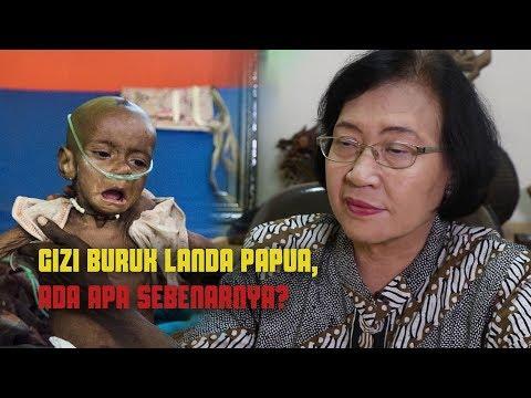 Gizi Buruk Landa Papua, Ada Apa Sebenarnya?