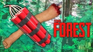 DYNAMITE LIMB REMOVAL (The Forest, Ep.28)