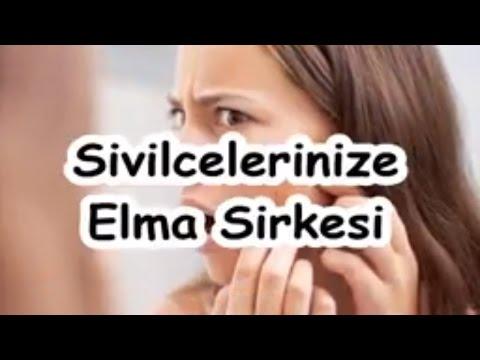 Sivilcelerinize Elma Sirkesi