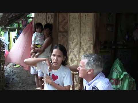 Kung gaano karaming mga patak ng dibdib pamamaga pagkatapos ng mammoplasty