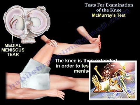 Badanie kolana - testy
