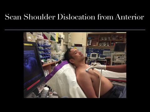Metode neconvenționale de tratare a bolilor articulare autoimune