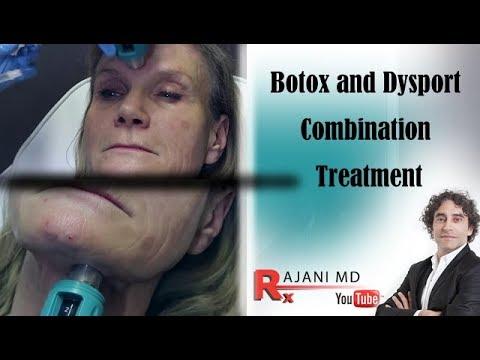Dysport and Botox Treatments