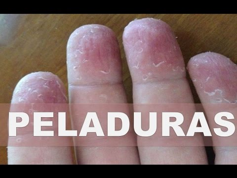 El emplasto tibetano del hongo de las uñas