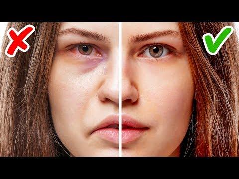 11 Sinais No Seu Rosto Que Indicam Problemas De Saúde