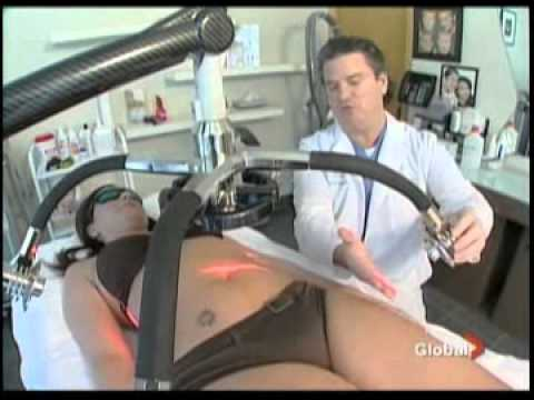 Zerona Laser Treatment | Liposuction | SpaMedicaTV    Video Thumbnail