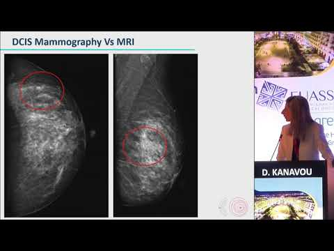D. Kanavou - Evaluation of MRI detected DCIS lesions in comparison with mammographic and ultrasound findings